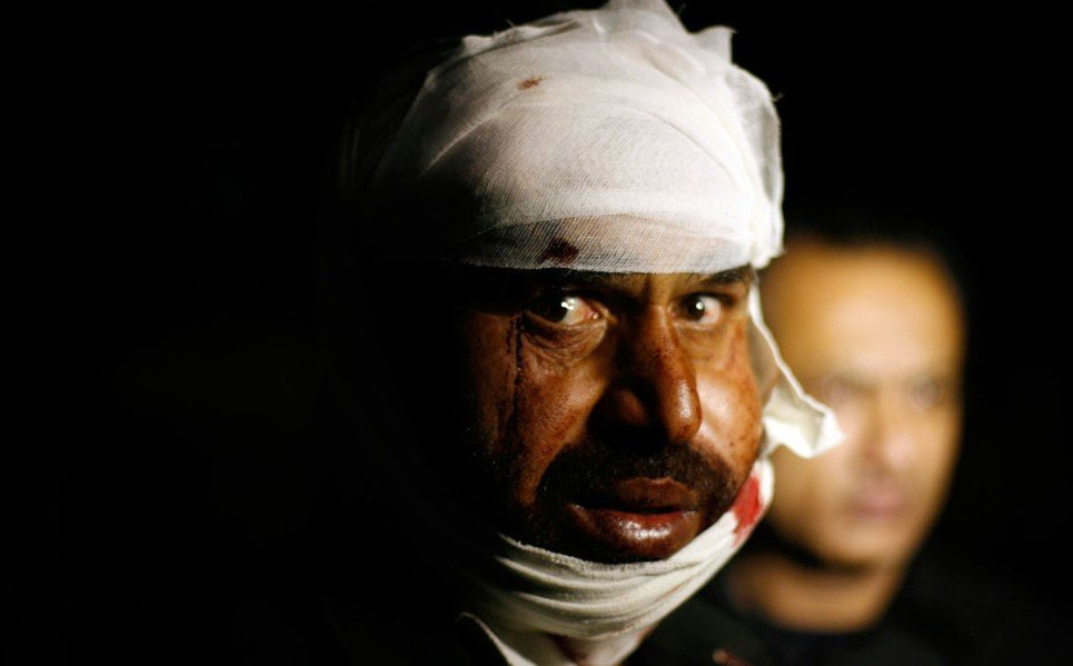 25. A Pakistani man wounded in a suicide bomb attack near Wagah border, Lahore that left at least 45 people dead - November 2, 2014.