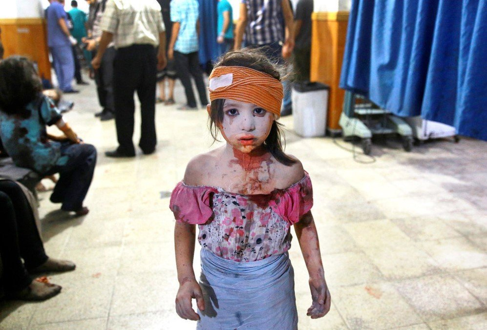 A wounded Syrian girl wanders about a makeshift hospital in the rebel-held area of Douma, following shelling and air raids by Syrian government forces – Aug. 22, 2015