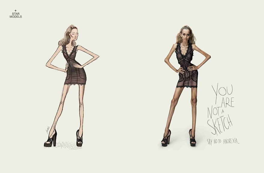 You're Not a Sketch. Say No to Anorexia