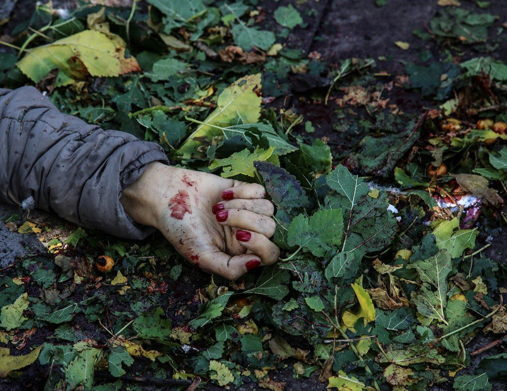A blood-covered hand of a victim is seen at the blast site after an explosion during a peace march in Ankara, Turkey. At least 86 people were killed and several wounded in twin explosions outside Ankara's main train station – Oct. 10, 2015
