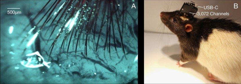 Human Brain Implant Neuralink